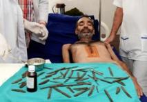 Insolite : Opéré après avoir avalé 40 couteaux