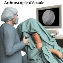Les nouvelles techniques thérapeutiques en arthroscopie disséquées à Marrakech