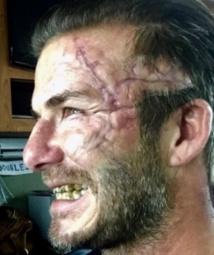 David Beckham défiguré pour les besoins du prochain film de Guy Ritchie