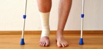 Réponses d'experts : Qu'est-ce qu'une fracture de fatigue?