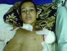 Drame à M'rirt : Un enfant perd ses bras par électrocution