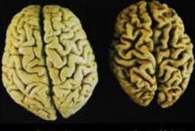 L'inflammation du sang liée à un risque accru d'Alzheimer