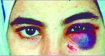 Violence contre les femmes  : Un projet de loi serait fin prêt