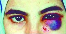 La violence contre les femmes dénoncée par des victimes : La parole libérée