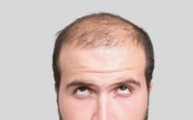 Méthode de culture ultra-rapide des cheveux