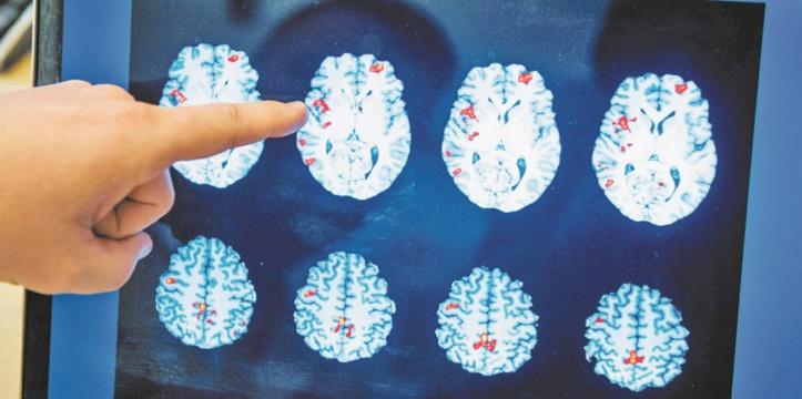600.000 à 700.000 personnes souffrent d'épilepsie au Maroc