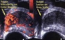 Elaboration d'un nouveau traitement du cancer de la prostate : Les grandes avancées de la recherche