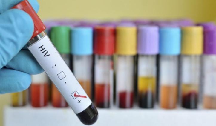 Identification d'une piste pour éliminer les réservoirs du VIH
