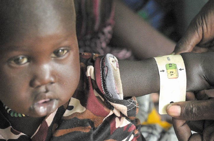 Au Soudan du Sud, les maladies sont aussi mortelles que la guerre