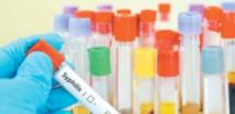 Plus d'un million de nouveaux cas de MST chaque jour