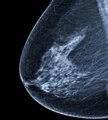 Un vaccin contre le cancer du sein montre des résultats prometteurs