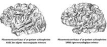 Schizophrénie : la piste des plis cérébraux