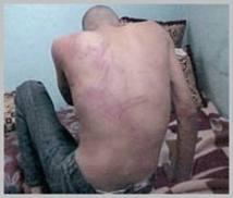 Le CNDH se saisit de l'affaire : Un étudiant torturé à la préfecture de police de Fès