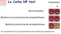 Deux tests rapides pour détecter les résistances aux antibiotiques