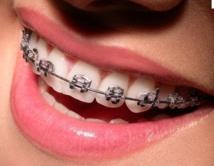 Insolites : La mode des bagues dentaires