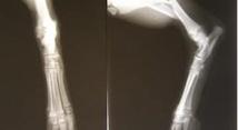 Et si les cellules souches permettaient de soigner les fractures ?