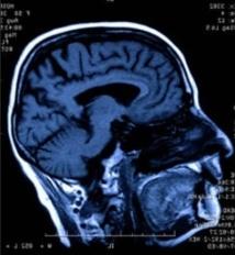 Le racisme pourrait se détecter  en observant l'activité du cerveau