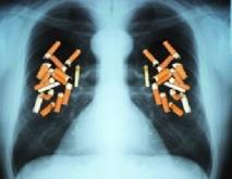 Arrêt du tabac : bon pour le cœur même si on prend du poids