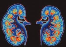 Le diabète, l'hypertension artérielle et la lithiase urinaire pointés du doigt