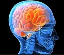 Comment mieux étudier un cerveau