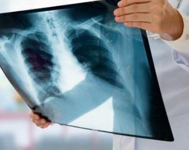 Extension du plan national de prévention et de contrôle de la tuberculose