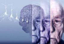 Alzheimer: une étude invalidée par quatre groupes de chercheurs