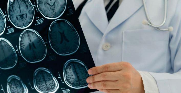 Avoir eu un traumatisme crânien augmente les risques d'AVC