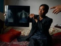 Les poumons brûlés du dragon chinois