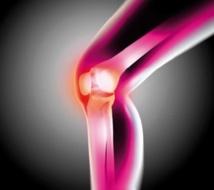 De l'eau et du sucre pour réduire la douleur de l'arthrose du genou