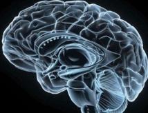 Que voit le cerveau quand le cœur s'arrête