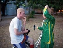 A Kinshasa, les albinos sont protégés par un catcheur