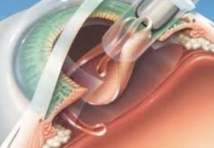 Campagne de chirurgie gratuite de la cataracte