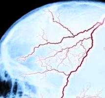 Les lésions cérébrales traumatiques augmentent le risque de décès prématuré