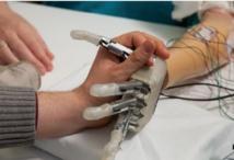 Une main bionique dotée du sens du toucher !