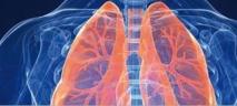 Des pneumologues appellent à mieux détecter et traiter l'asthme chez les femmes