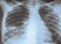 La tuberculose de l'enfant, un problème sous-estimé dans le monde