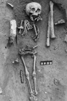 Le plus ancien cas de trisomie 21 identifié sur un squelette trouvé en France
