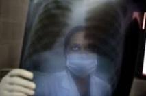 Un nouveau traitement pour soigner les tuberculoses multirésistantes