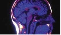 """Les """"signaux cérébraux"""" bientôt à la rescousse de la publicité"""