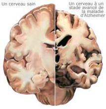 Une carence en vitamine D liée à un risque accru  d'Alzheimer et de démence