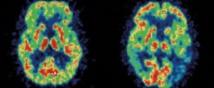 Alzheimer : bientôt un diagnostic simplifié et fiable