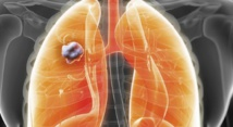 Mise au point d'un test de dépistage précoce du cancer du poumon