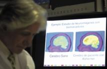 """En Colombie, une """"malédiction"""" pour guérir la planète d'Alzheimer"""