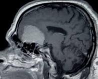 Journées internationales de chirurgie du crâne à Dakhla