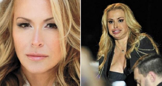 Anastacia, défigurée par le botox ?