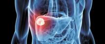 Soufiane Mellas : Le Maroc enregistre chaque année 30.000 cas de cancer