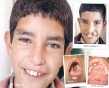 L'Opération Smile Morocco fait escale à Dakhla