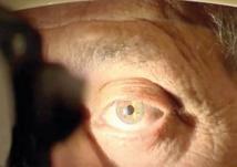 Le glaucome affecte près de 500.000 Marocains