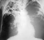 Renforcer le dépistage de la tuberculose parmi les populations à haut risque