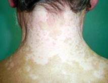 Un Tunisien trouve un traitement contre la maladie du vitiligo